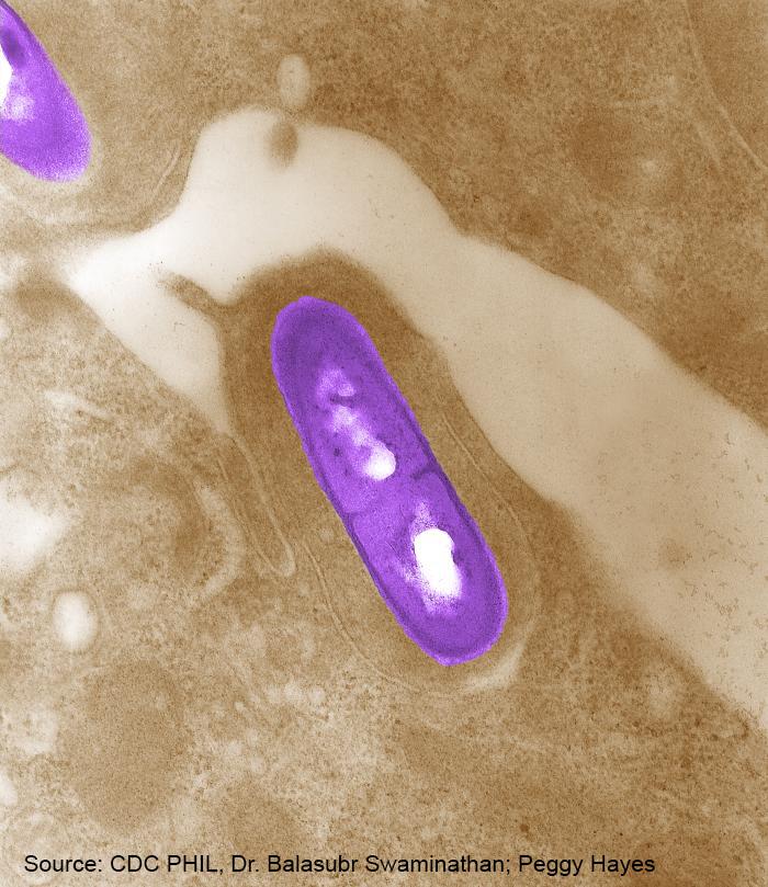 Listeria_CDC