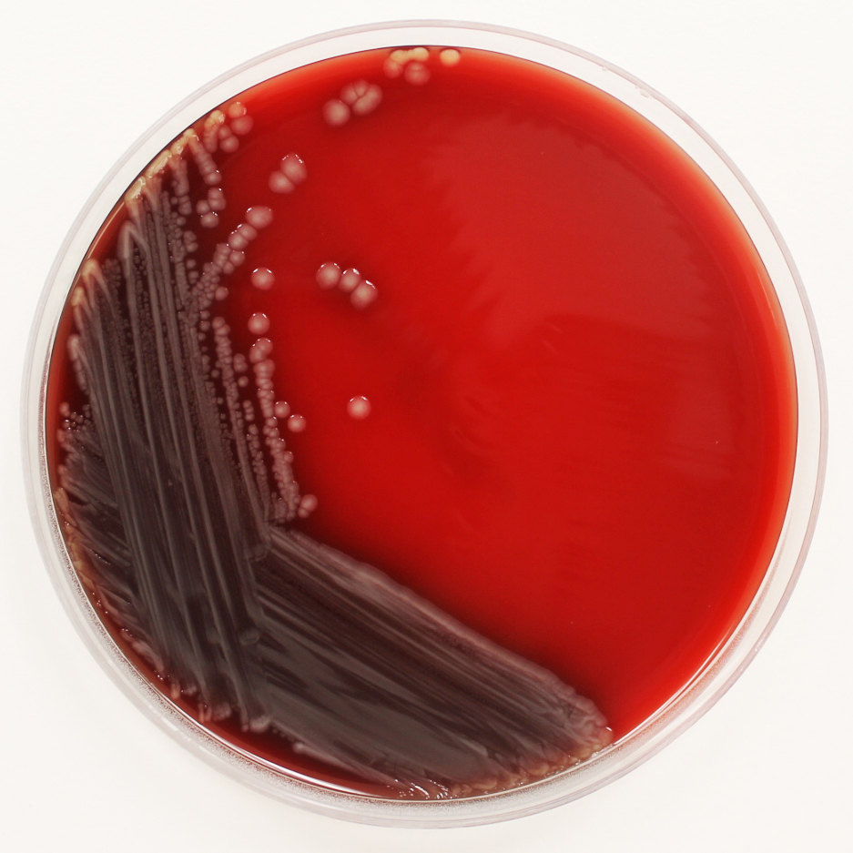 e-coli-on-blood-agar_2_cropped