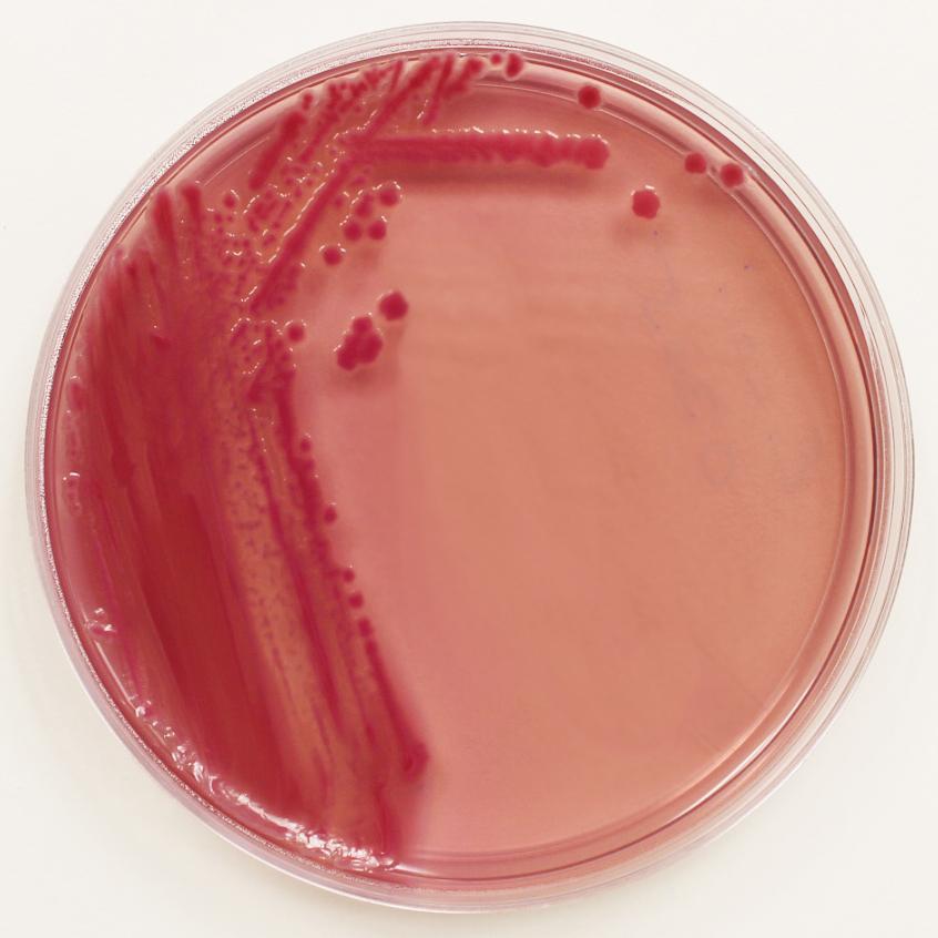 e-coli-on-macconkey-agar_cropped