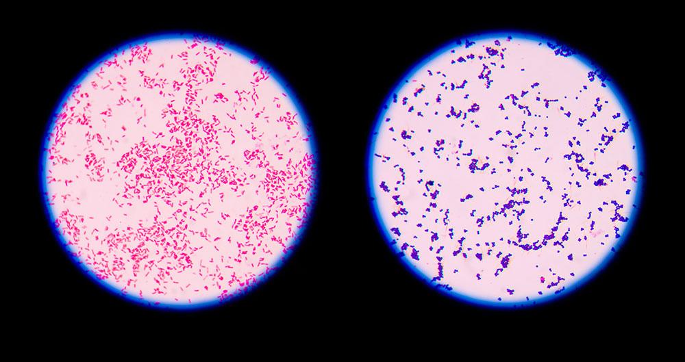 9 Gram Staining Best Practices – Microbiologics Blog